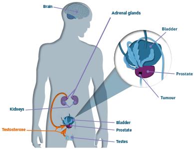 whatisprostatecancer-figure1